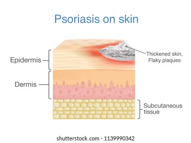 Illustration of human skin layer when plaque psoriasis signs and symptoms appear.