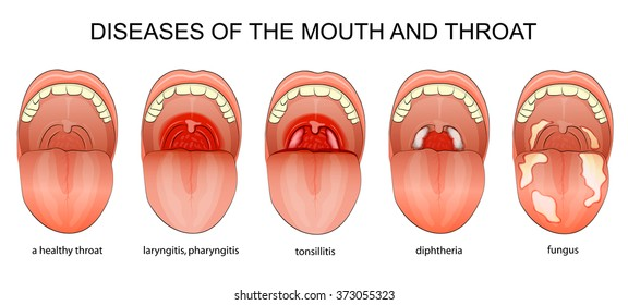 illustration of the inflammatory diseases of the throat