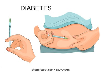 illustration of insulin injections in the stomach. insulin syringe