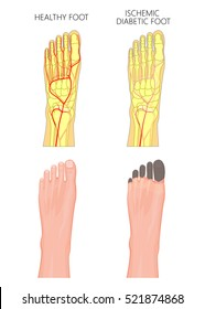Illustration of an Ischemic Diabetic Foot with gangrene of the toes of the foot. Used: transparency, gradient.