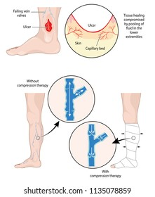 Illustration of a leg ulcer and the damaged vein valves that cause it, and working veins with a compression bandage
