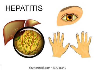 illustration of the liver, hepatitis and yellowing of eyes and hands