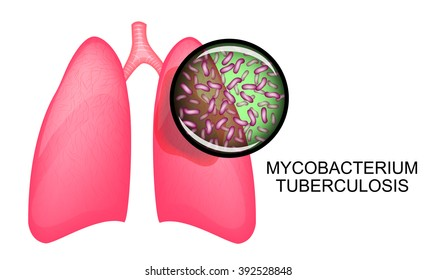 illustration of the lungs sick of a tuberculosis. Mycobacterium tuberculosis