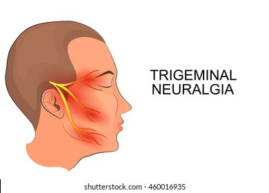 illustration of a male head. trigeminal neuralgia. neuroscience