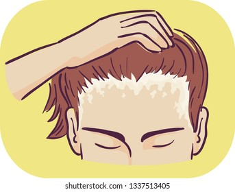 Illustration of a Man Showing Scaly Patches of Scalp