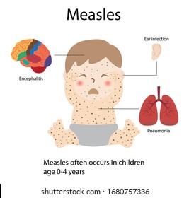 Illustration of medical and biology, Measles often occurs in children, Measles can cause pneumonia, Otitis and encephalitis