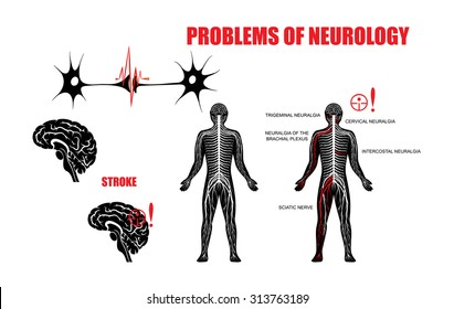 Illustration of the nervous system and neurological diseases. Brain, stroke, trigeminal neuralgia, cervical plexus neuralgia, neuralgia of the brachial plexus, intercostal neuralgia and sciatic nerve.