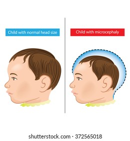 Illustration of a newborn baby with Microcephaly disease caused by Zika virus. Ideal for informational and institutional related sanitation and medicine