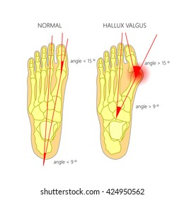 Illustration of the normal foot and hallux valgus with indicating of the first metatarsophalangeal and the first-second inter-metatarsal angles. Used: gradient, transparency. Blend mode.