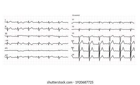 Illustration of normal human electrocardiogram or EKG 12 leads on white background. Vector illustration.