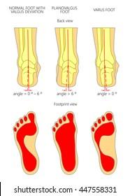 Varus Feet Images Stock Photos Vectors Shutterstock