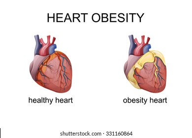 illustration of obesity heart. comparison