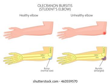 Illustration of Olecranon bursitis or student's elbow.  Used: Gradient, transparency, blend, blend mode.