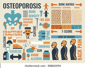 Illustration of osteoporosis infographic icon and elements concept