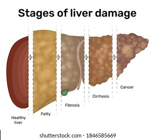 Illustration of the progression of liver disease from fatty liver to cancer