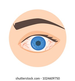 Illustration of a red eye. Disease. infection.