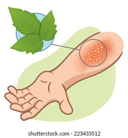 Illustration representing first aid arm with allergy and allergic rashes due to poison ivy poisoning