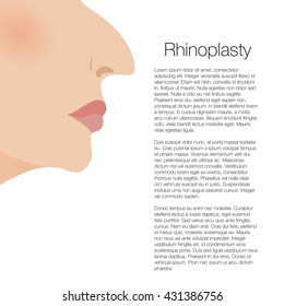 illustration of rhinoplasty. cosmetic surgery. aesthetic medicine. vector