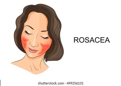 illustration of rosacea on the girl's face. Dermatology