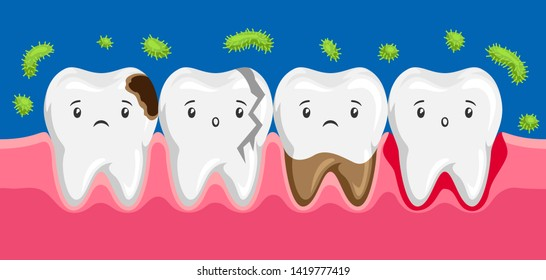 Illustration of sick teeth in oral cavity. Children dentistry sad characters. Kawaii facial expressions.