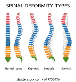 Illustration of spinal deformity types. Kyphosis, lordosis and scoliosis.