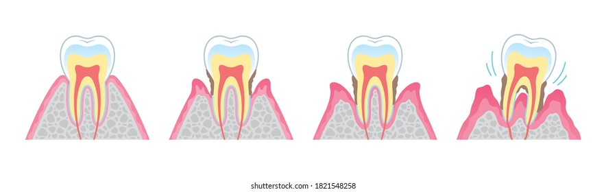 It is an illustration that explains the structure of periodontal disease in cross section and in English. Since it is vector art, it can be edited.