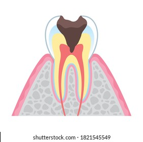 It is an illustration that explains the structure of tooth decay in cross section and English. Since it is vector art, it can be edited.