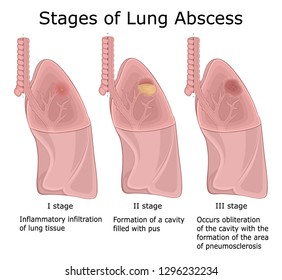 Illustration of the three stages of pulmonary disease - Lung Abscess