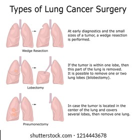 Illustration of three types of lung cancer surgery with descriptions