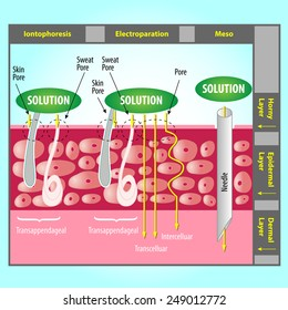 Illustration of Transdermal Delivery Skin Pore Mechanism. Enhancement of Skin Penetration