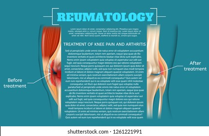 Illustration Treatment of Knee Pain and Arthritis. 3d Banner Vector Realistic Image Reumatology Anatomy Human Knee. Medical Poster Showing Result Before and After Treatment Leg Joint.