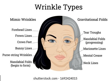 Illustration of two types of wrinkles, such as mimic and gravitational