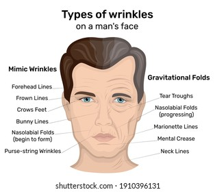 An illustration of two types of wrinkles such as expression and gravity on a man's face. On one half of the man's face wrinkles only began to form, and the other half shows the wrinkles of old age