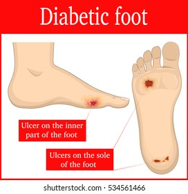 Illustration of ulcers that occur in diabetic foot syndrome