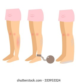 Illustration of varicose veins. The main symptoms of varicose veins - pain, redness, swelling, heaviness in the legs. Vector illustration.