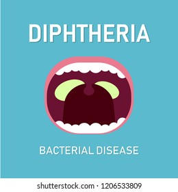 Illustration Vector: Diphteria bacterial disease, medical concept