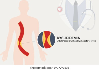 Illustration vector: Dyslipidemia, unbalanced and unhealthy cholesterol levels