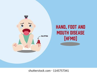 Illustration vector: Hand, foot and mouth disease (HFMD) is a virus attacking child.
