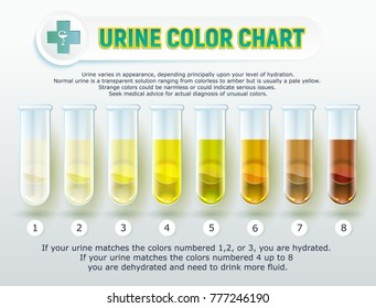 Illustration of a visual poster: Urine Color Chart. The image of test tubes with different urine color and explanatory inscriptions.