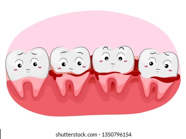 Illustration of Worried Teeth Mascots with Bleeding Gums