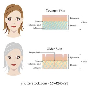 Illustrator of skin aging diagrams. The collagen framework and face comparison between two types of skin - younger and older. A diagram is showing elastin, hyaluronic acid, and collagen.