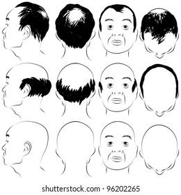 An image of a asian male pattern baldness set.