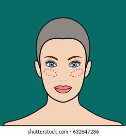 Implants in cheeks, lipofilling. Beautiful female face. Vector illustration.