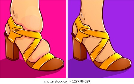 Inconvenient shoes, swelling of the feet. Before, after. Vector illustration.