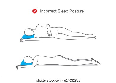 Incorrect posture while sleeping. Illustration about healthy lifestyle.