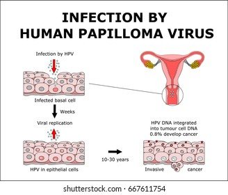 INFECTION BY HUMAN PAPILLOMA VIRUS, ?olor vector illustration