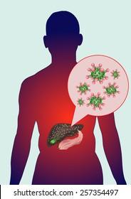 Infection with hepatitis viruses.