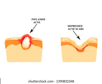 Inflamed acne on the skin. Inflamed pimple. The structure of the skin. Acne scar. Infographics. Vector illustration on isolated background.