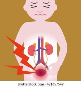 Inflammation of the bladder, human urinary organs, heart, kidney, bladder, vector illustration
