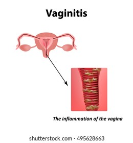 Inflammation Of The Vagina Vaginitis Infographics Vector Illustration On Isolated Background